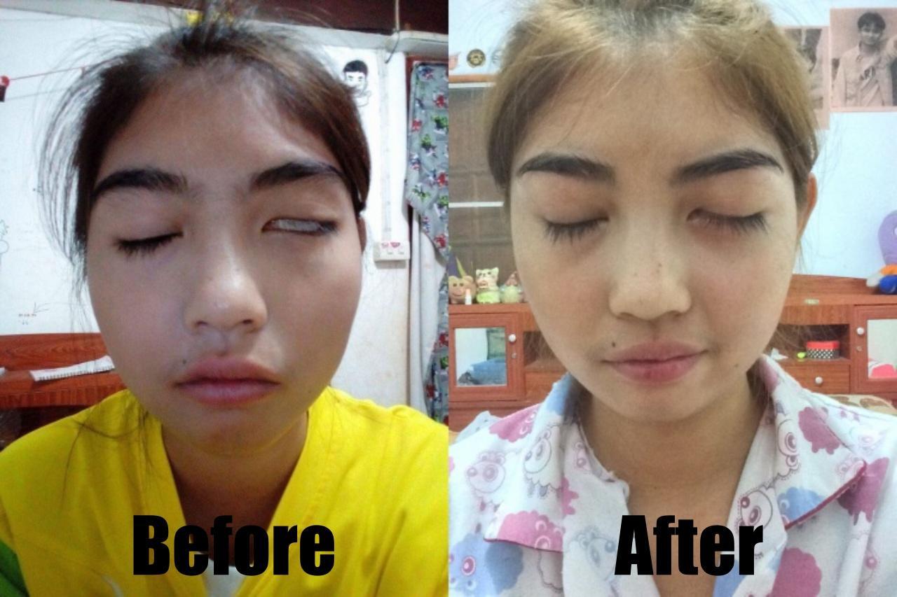 หลับตาซ้ายได้สนิท หลังรักษานาน 5 เดือน