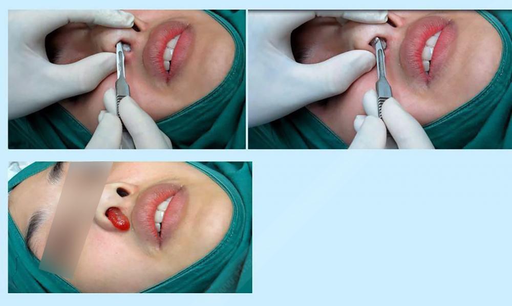 วิธีการทำศัลยกรรม