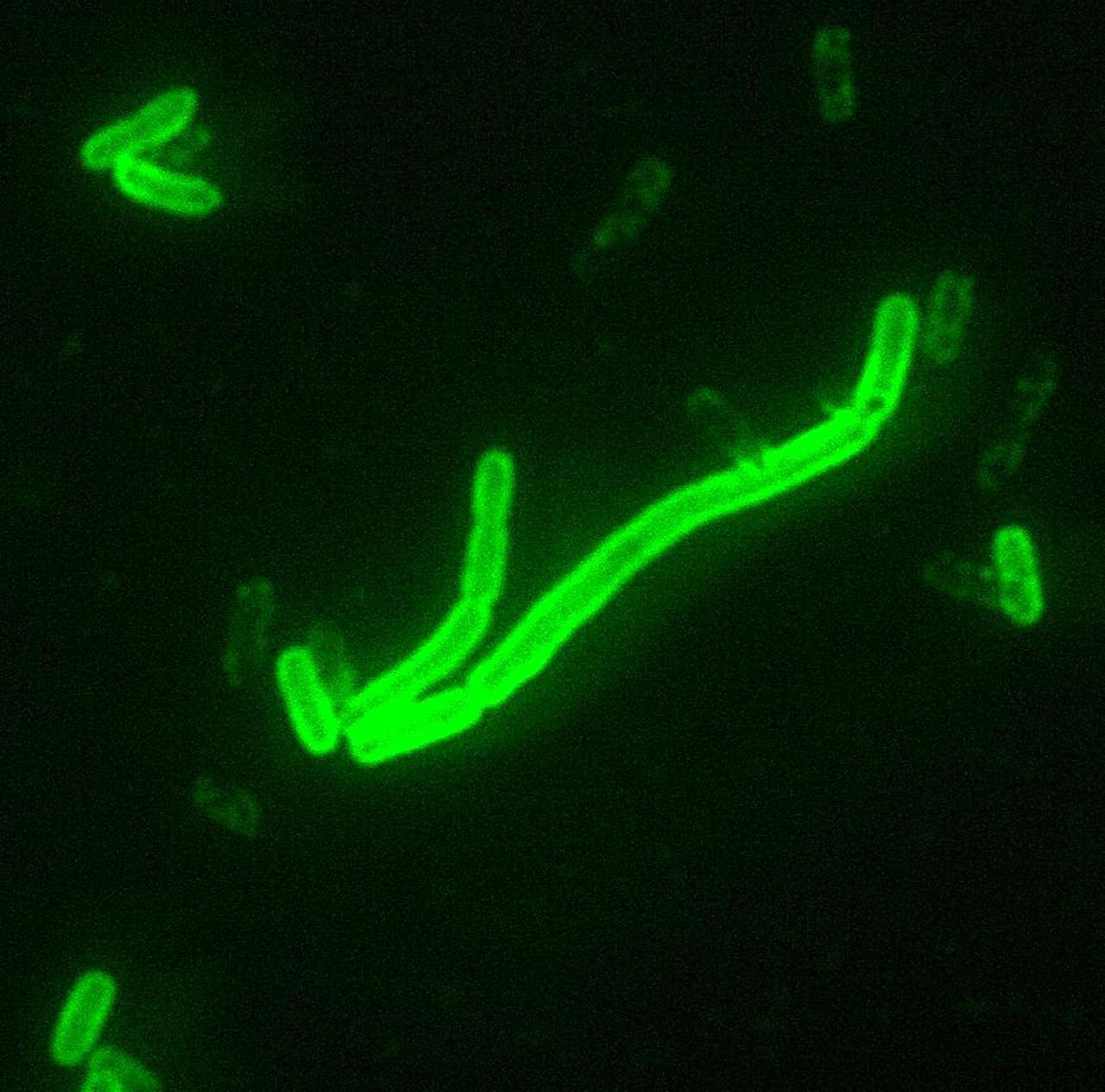 แบคทีเรีย เยอร์ซิเนีย เปสติส เชื้อก่อโรคกาฬโรค