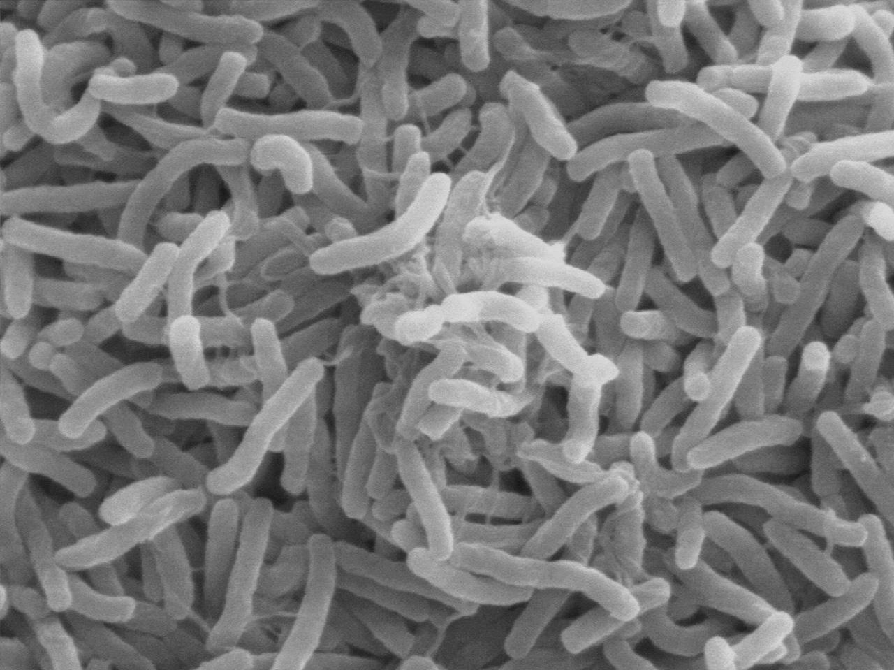 แบคทีเรีย ไวบริโอ คอเลอรา เชื้อก่อโรคอหิวาฯ