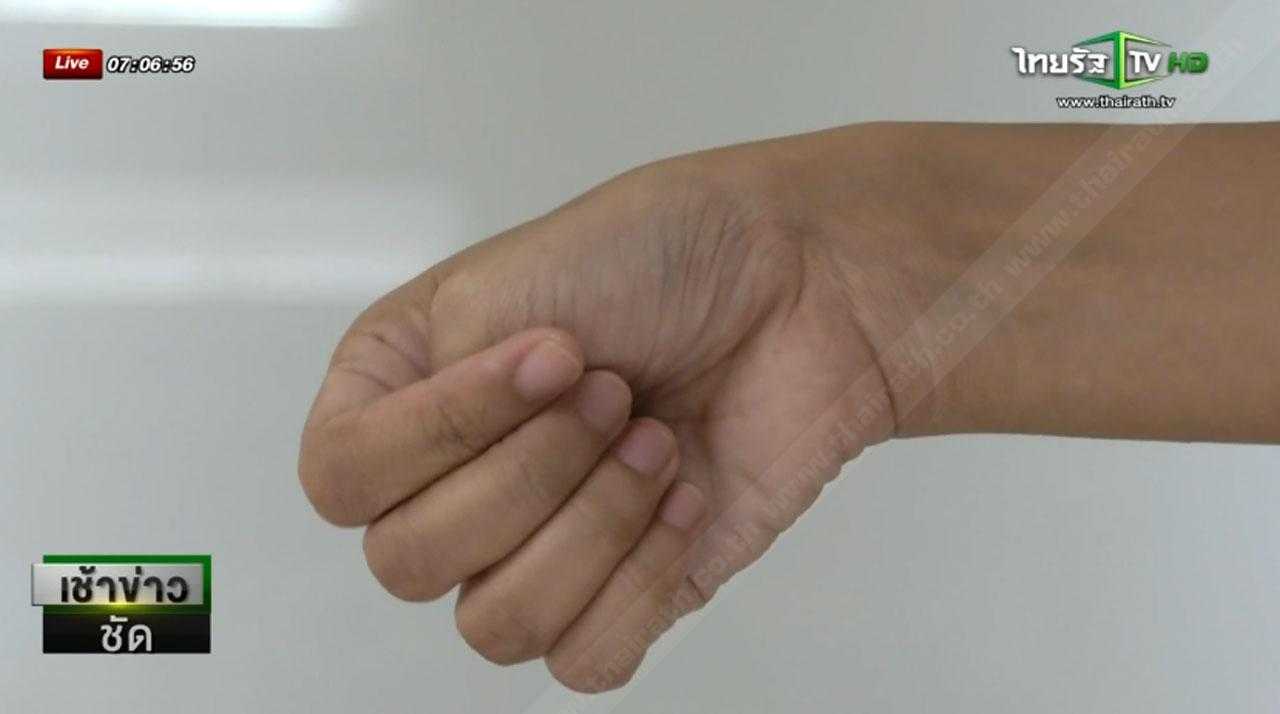 กำนิ้วหัวแม่มือ แล้วบิดข้อมือไปด้านนิ้วก้อยหากเจ็บก็มีความเสี่ยง