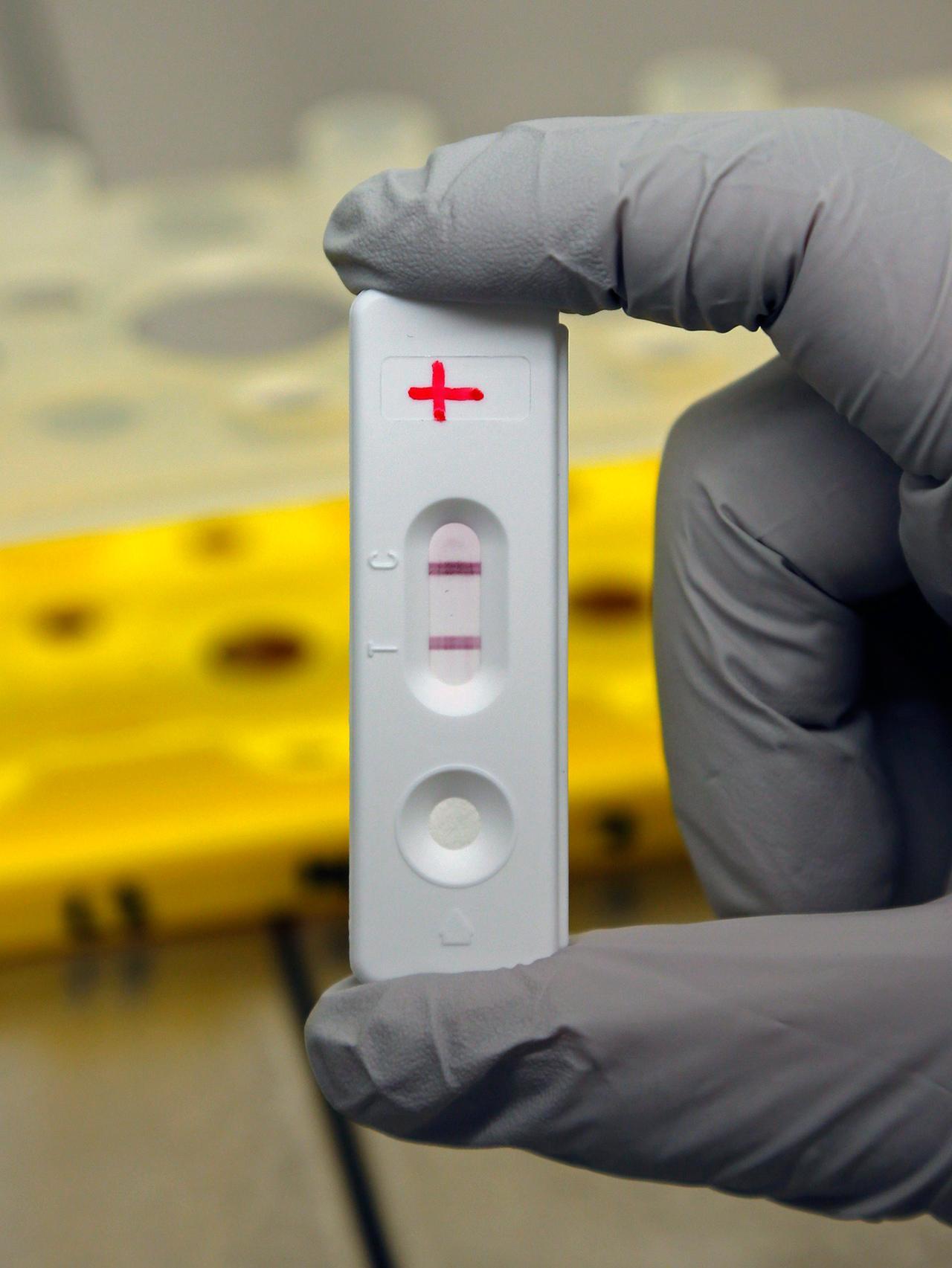วัคซีนอีโบลา