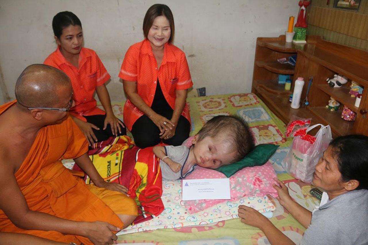 หน่วยงานราชการ- ประชาชน มาเยี่ยม น้องกานต์ 'เด็กหัวโต' วัย 6 ขวบที่สัตหีบ ขลบุรี