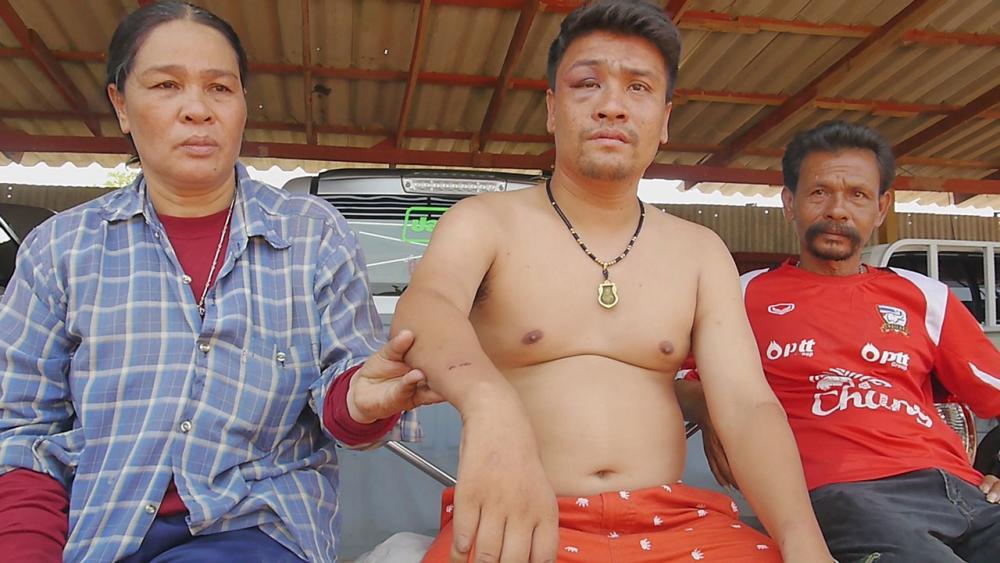 นายนที ช่อเหมือน อายุ 30 ปี หนุ่มพิการแขนขวาลีบ กับแผลที่ข้อมือซ้ายขวาเป็นแผลถลอกจากรอยกุญแจมือ ตร.