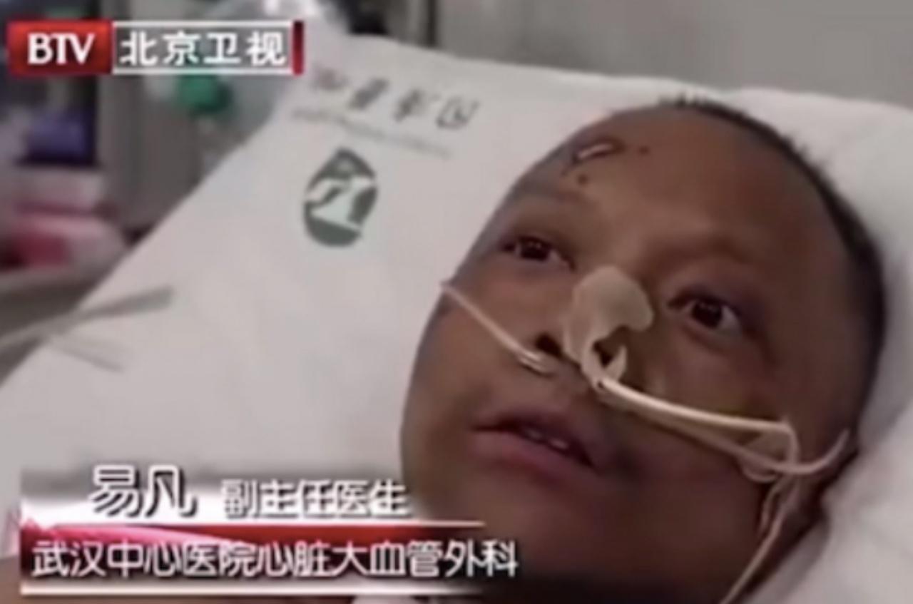 ดร.หยี ฟ่าน นายแพทย์ประจำโรงพยาบาลอู่ฮั่นอีกคนหนึ่งที่ติดเชื้อโควิด-19 และมีอาการผิวเปลี่ยนสีเช่นกัน แต่ได้รับการรักษาหาย ออกจากโรงพยาบาลได้แล้ว
